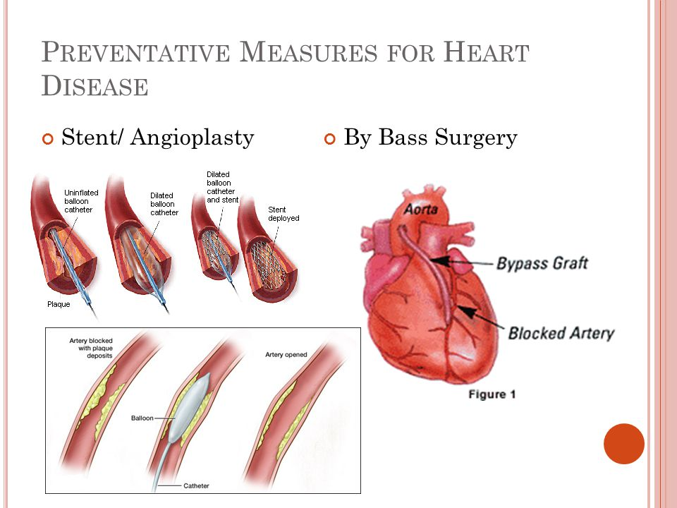 P REVENTATIVE M EASURES FOR H EART D ISEASE Stent/ AngioplastyBy Bass Surgery