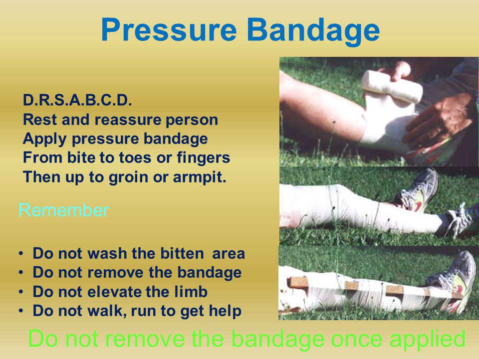 Pressure Bandage D.R.S.A.B.C.D. Rest and reassure person Apply pressure bandage From bite to toes or fingers Then up to groin or armpit. Remember Do n