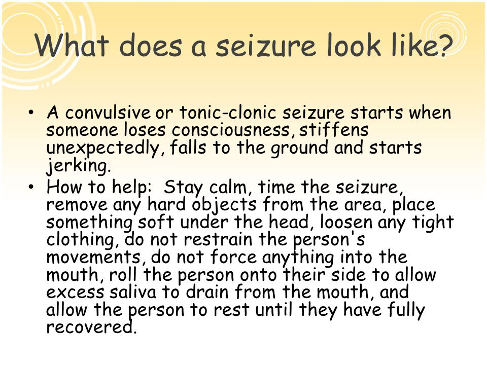 What does a seizure look like.