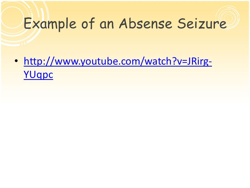 Example of an Absense Seizure http://www.youtube.com/watch v=JRirg- YUqpc http://www.youtube.com/watch v=JRirg- YUqpc