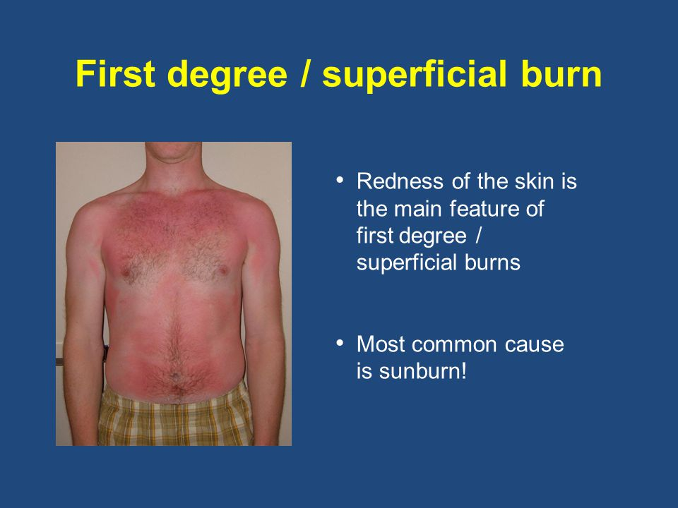 First degree / superficial burn Redness of the skin is the main feature of first degree / superficial burns Most common cause is sunburn!