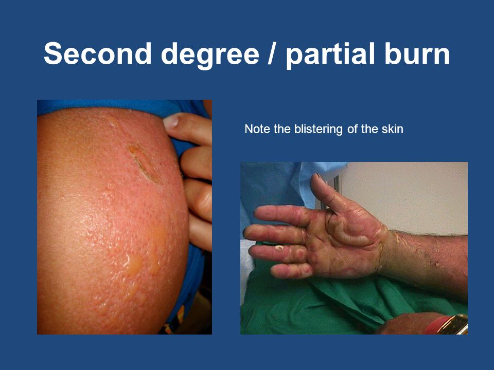 Second degree / partial burn Note the blistering of the skin