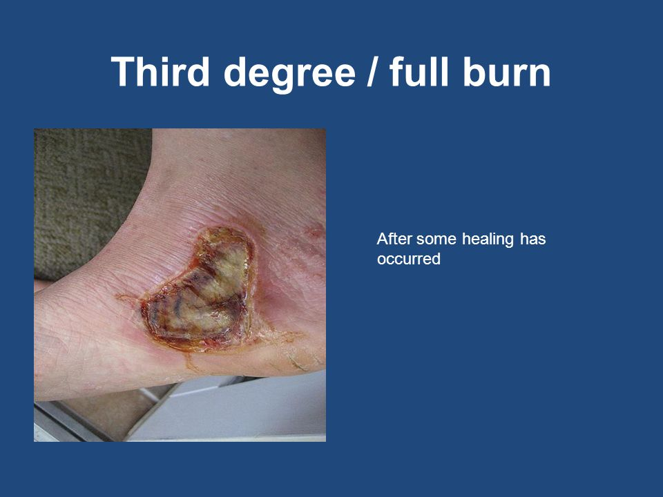 Third degree / full burn After some healing has occurred