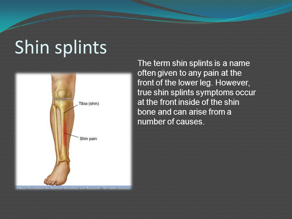 Shin splints The term shin splints is a name often given to any pain at the front of the lower leg. However, true shin splints symptoms occur at the f