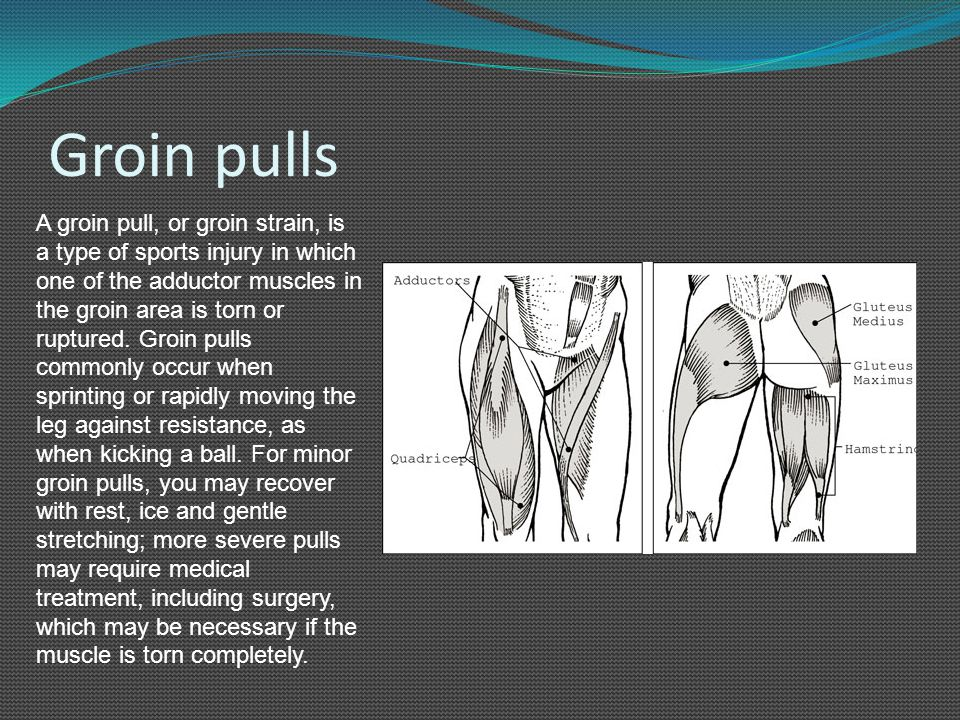 Groin pulls A groin pull, or groin strain, is a type of sports injury in which one of the adductor muscles in the groin area is torn or ruptured. Groi