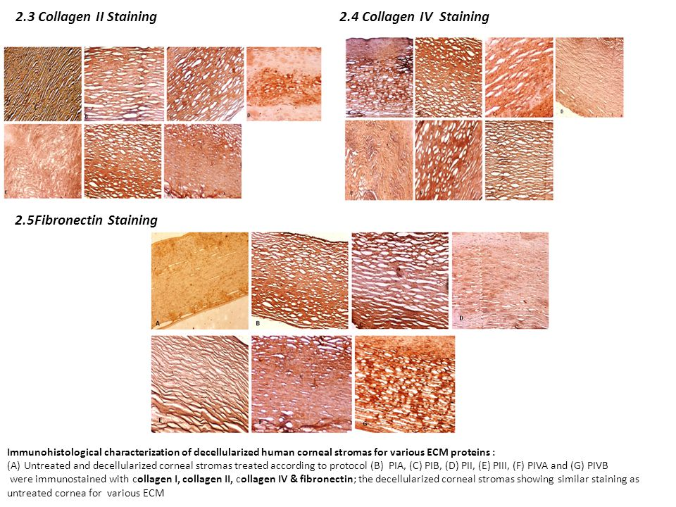 2.3 Collagen II Staining2.4 Collagen IV Staining Immunohistological characterization of decellularized human corneal stromas for various ECM proteins : (A)Untreated and decellularized corneal stromas treated according to protocol (B) PIA, (C) PIB, (D) PII, (E) PIII, (F) PIVA and (G) PIVB were immunostained with collagen I, collagen II, collagen IV & fibronectin; the decellularized corneal stromas showing similar staining as untreated cornea for various ECM 2.5Fibronectin Staining