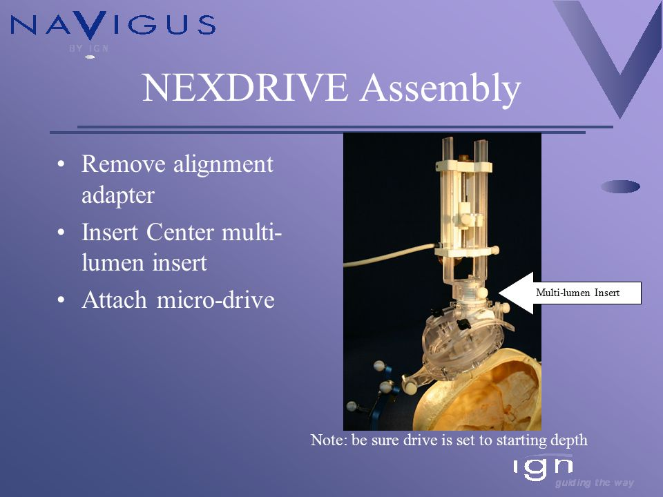 NEXDRIVE Assembly Remove alignment adapter Insert Center multi- lumen insert Attach micro-drive Note: be sure drive is set to starting depth Multi-lumen Insert