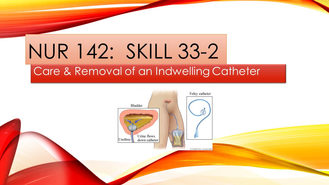 NUR 142: SKILL 33-2 Care & Removal of an Indwelling Catheter