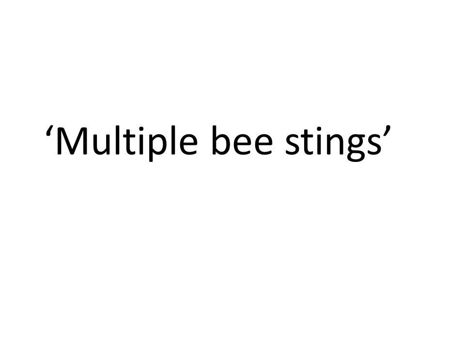 'Multiple bee stings'