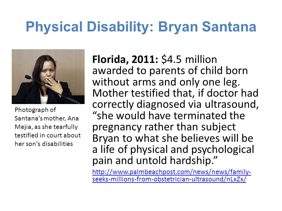 Physical Disability: Bryan Santana Florida, 2011: $4.5 million awarded to parents of child born without arms and only one leg.