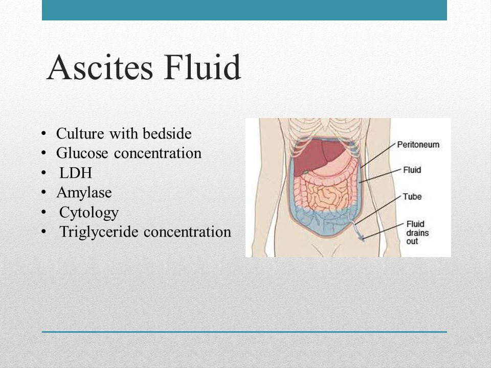 Ascites Fluid Culture with bedside Glucose concentration LDH Amylase Cytology Triglyceride concentration