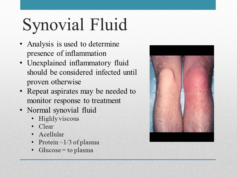 Synovial Fluid Analysis is used to determine presence of inflammation Unexplained inflammatory fluid should be considered infected until proven otherwise Repeat aspirates may be needed to monitor response to treatment Normal synovial fluid Highly viscous Clear Acellular Protein ~1/3 of plasma Glucose = to plasma