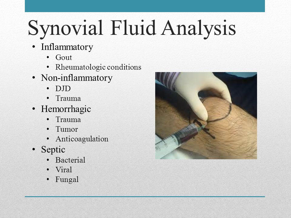 Synovial Fluid Analysis Inflammatory Gout Rheumatologic conditions Non-inflammatory DJD Trauma Hemorrhagic Trauma Tumor Anticoagulation Septic Bacterial Viral Fungal