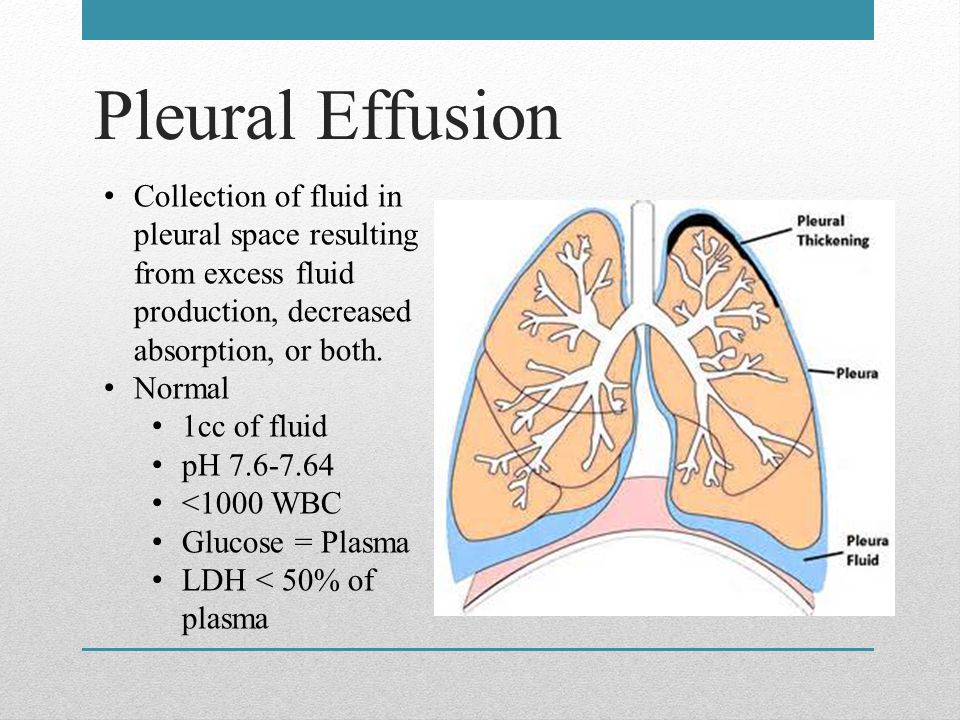 Pleural Effusion Collection of fluid in pleural space resulting from excess fluid production, decreased absorption, or both.