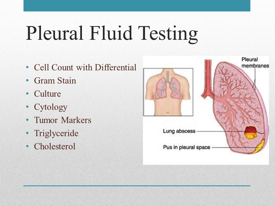 Pleural Fluid Testing Cell Count with Differential Gram Stain Culture Cytology Tumor Markers Triglyceride Cholesterol