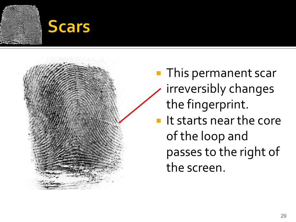  This permanent scar irreversibly changes the fingerprint.