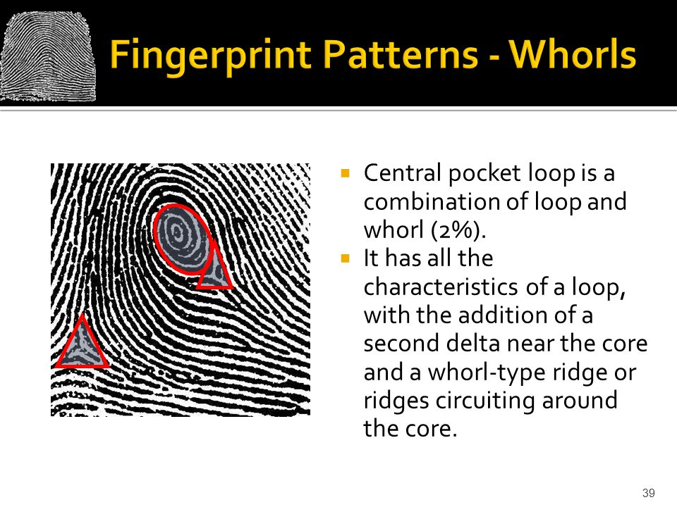  Central pocket loop is a combination of loop and whorl (2%).
