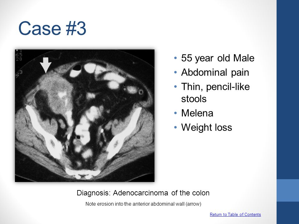 Case #3 Return to Table of Contents 55 year old Male Abdominal pain Thin, pencil-like stools Melena Weight loss Diagnosis: Adenocarcinoma of the colon Note erosion into the anterior abdominal wall (arrow)