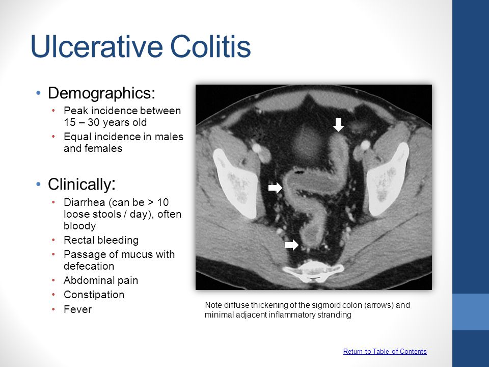 Ulcerative Colitis Return to Table of Contents Demographics: Peak incidence between 15 – 30 years old Equal incidence in males and females Clinically : Diarrhea (can be > 10 loose stools / day), often bloody Rectal bleeding Passage of mucus with defecation Abdominal pain Constipation Fever Note diffuse thickening of the sigmoid colon (arrows) and minimal adjacent inflammatory stranding