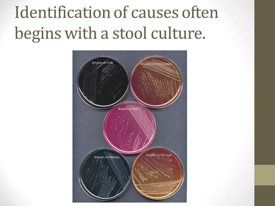 Identification of causes often begins with a stool culture.