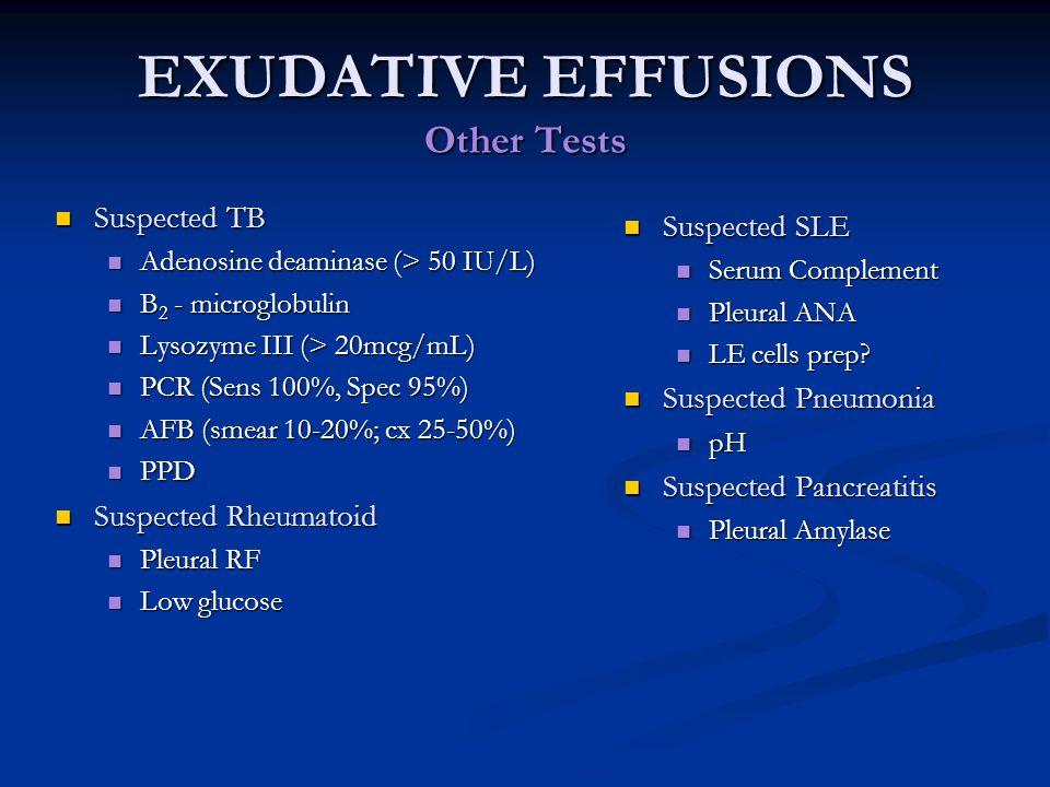 EXUDATIVE EFFUSIONS Other Tests Suspected TB Suspected TB Adenosine deaminase (> 50 IU/L) Adenosine deaminase (> 50 IU/L) B 2 - microglobulin B 2 - mi