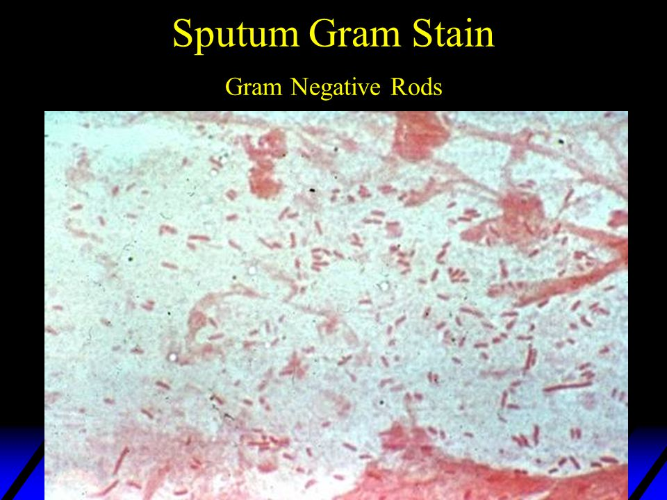 Gram Negative Microscan Panel