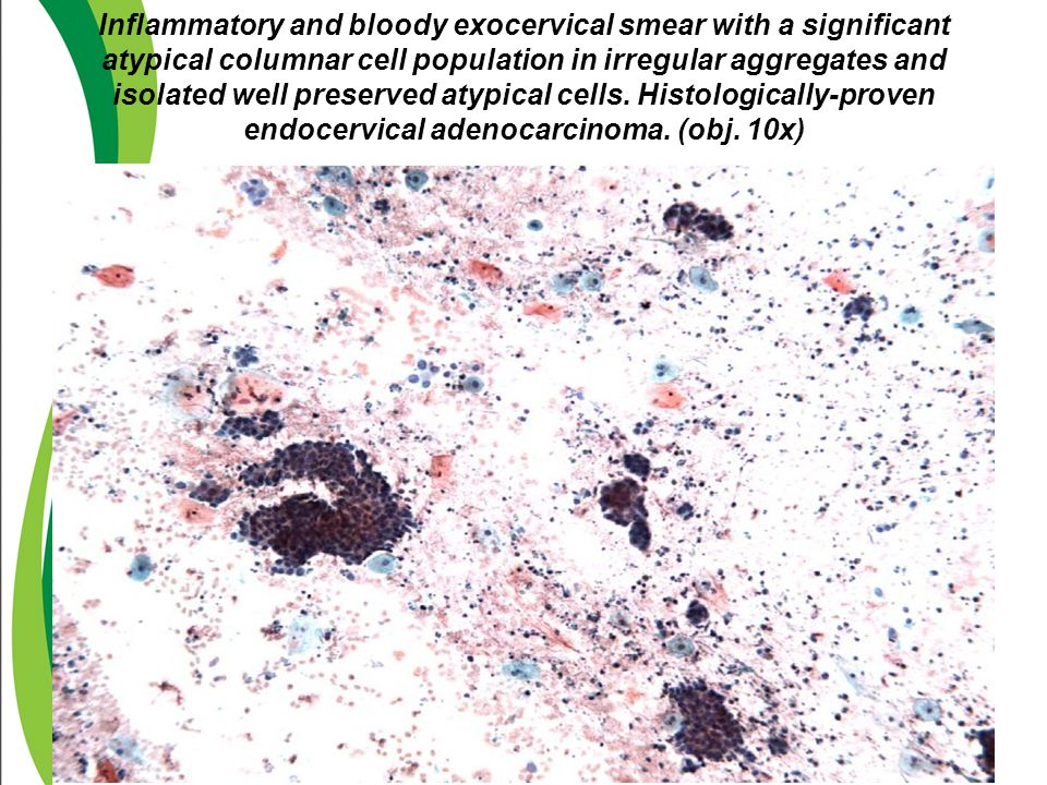 Inflammatory and bloody exocervical smear with a significant atypical columnar cell population in irregular aggregates and isolated well preserved aty