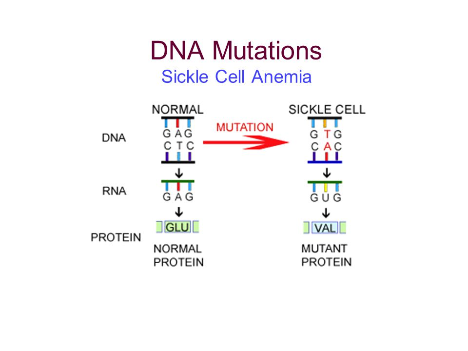 DNA Mutations Sickle Cell Anemia