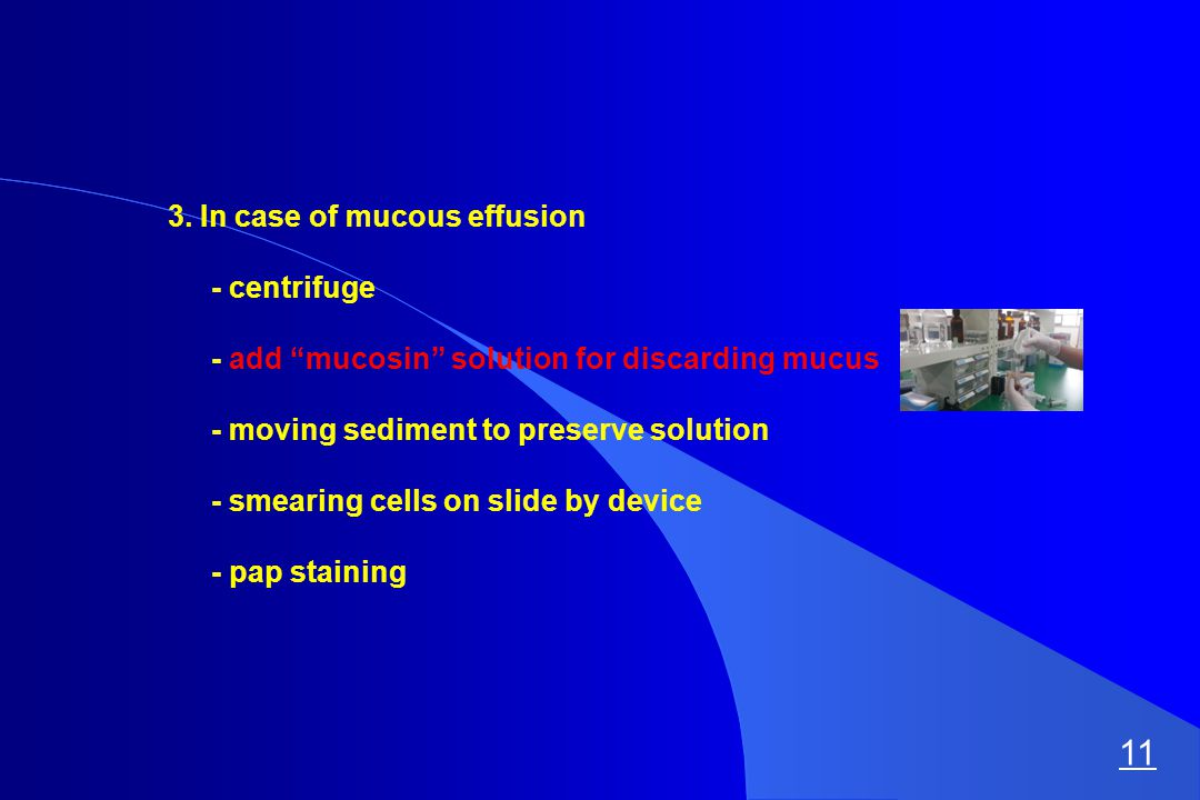 """3. In case of mucous effusion - centrifuge - add """"mucosin"""" solution for discarding mucus - moving sediment to preserve solution - smearing cells on sl"""