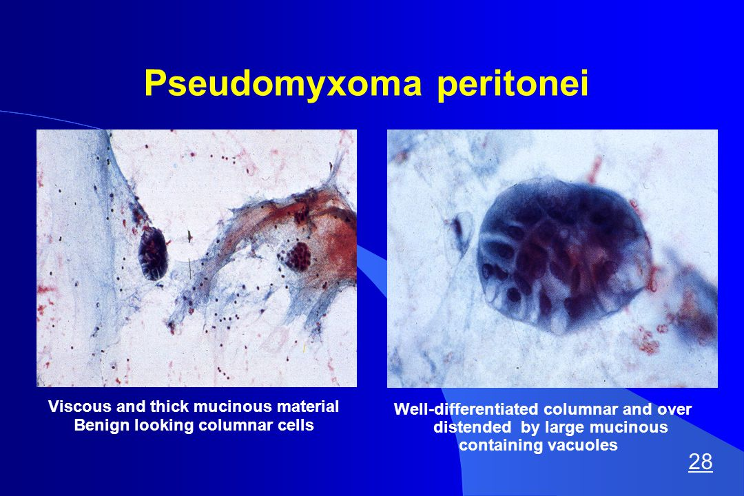 Pseudomyxoma peritonei Viscous and thick mucinous material Benign looking columnar cells Well-differentiated columnar and over distended by large mucinous containing vacuoles 28