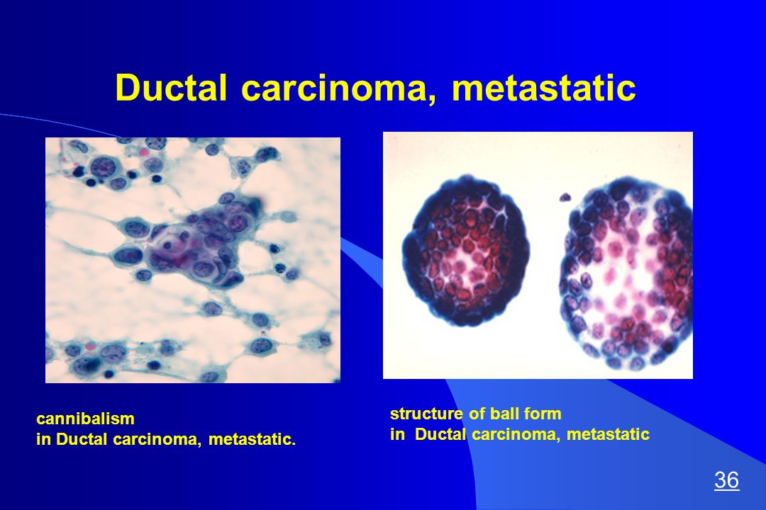 Ductal carcinoma, metastatic cannibalism in Ductal carcinoma, metastatic.