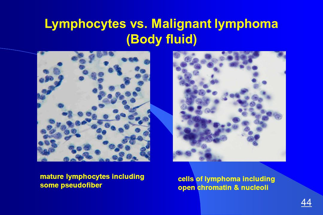 Lymphocytes vs.