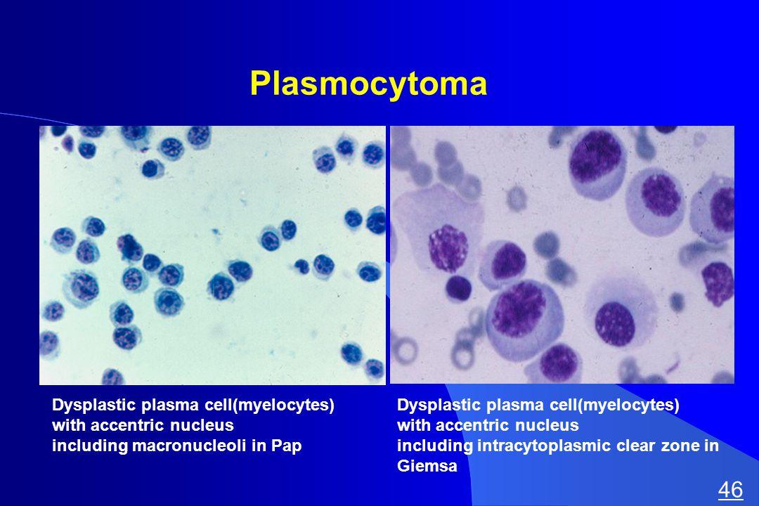 Plasmocytoma Dysplastic plasma cell(myelocytes) with accentric nucleus including macronucleoli in Pap Dysplastic plasma cell(myelocytes) with accentric nucleus including intracytoplasmic clear zone in Giemsa 46