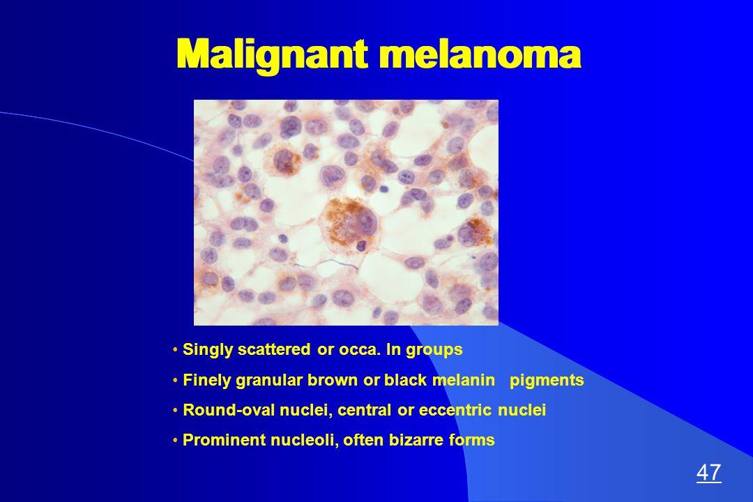 Malignant melanoma Singly scattered or occa.