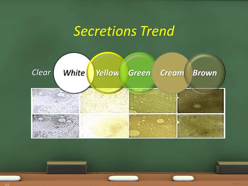 Secretions Trend 50 Clear WhiteYellowGreenCreamBrown May 2014