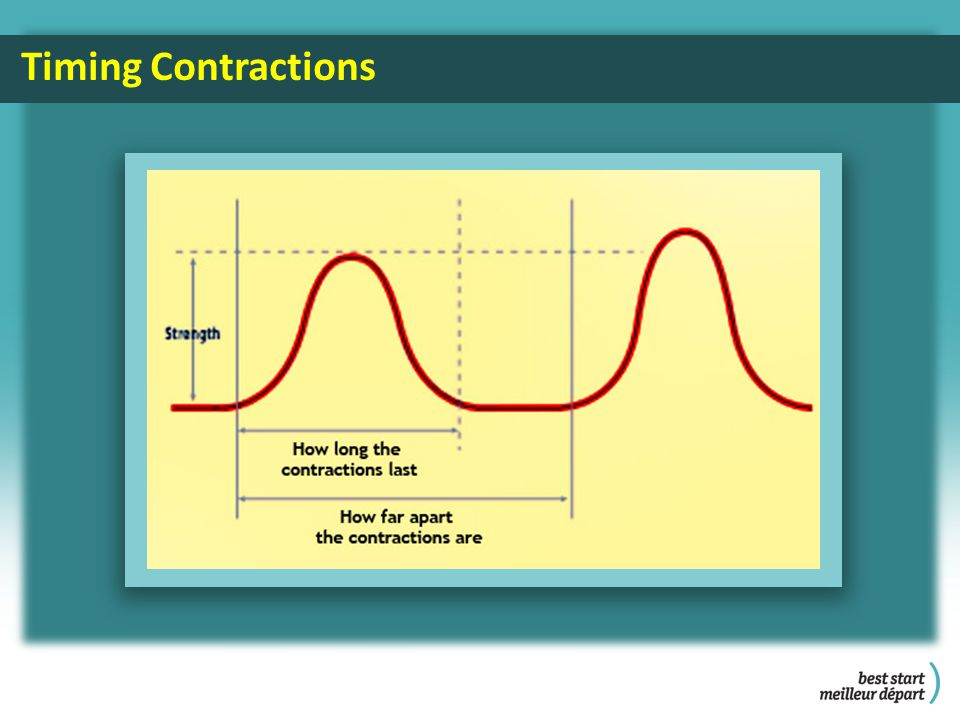 Timing Contractions