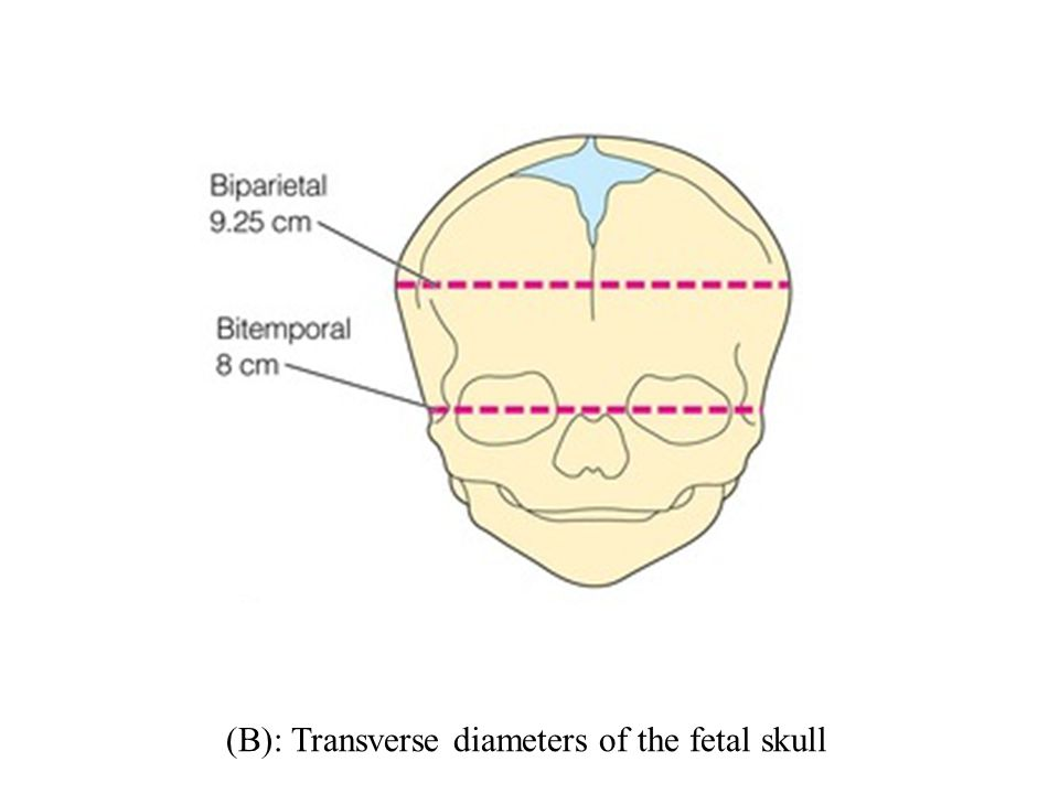 (B): Transverse diameters of the fetal skull