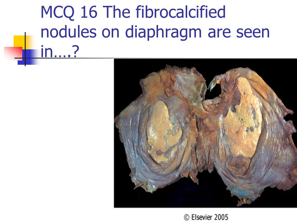 MCQ 16 The fibrocalcified nodules on diaphragm are seen in….