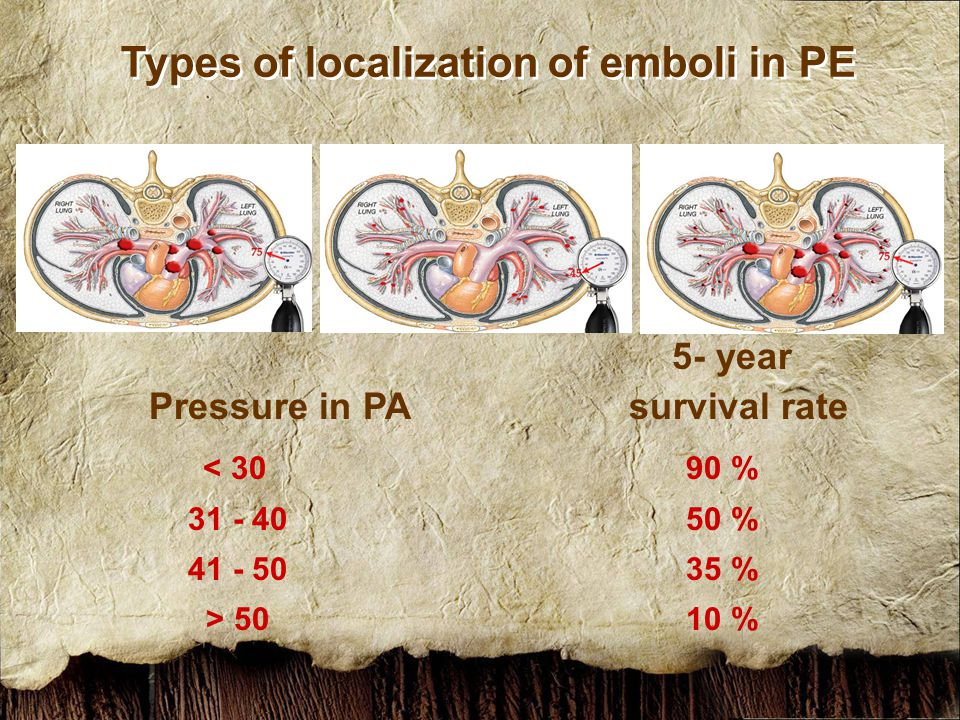 Types of localization of emboli in PE 5- year Pressure in PAsurvival rate < 30 90 % 31 - 40 50 % 41 - 50 35 % > 50 10 %