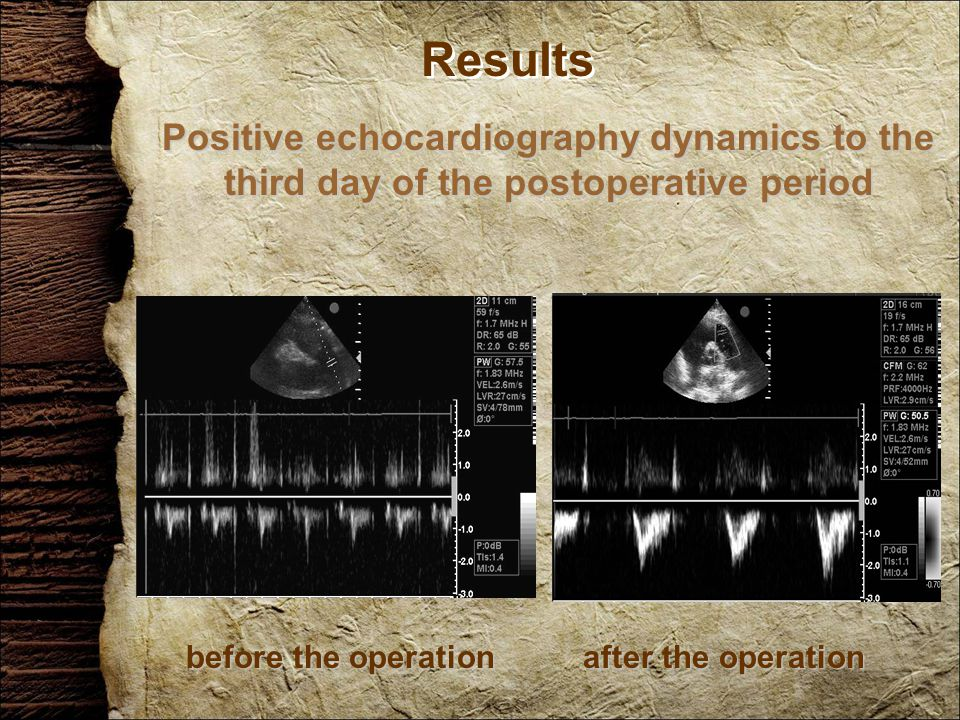 Results Positive echocardiography dynamics to the third day of the postoperative period before the operation after the operation