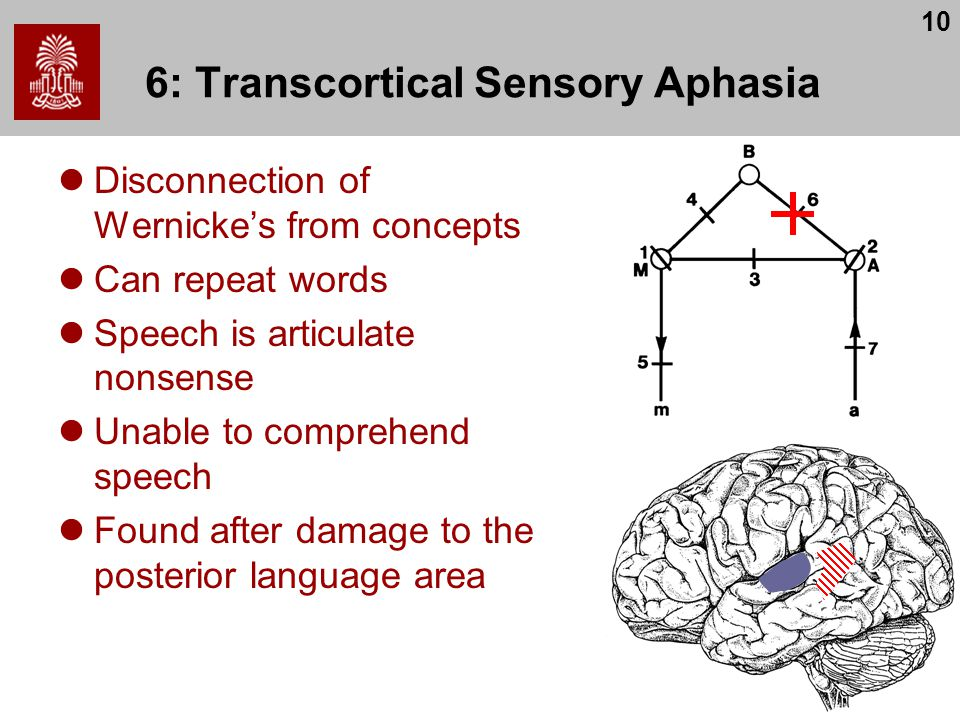 10 6: Transcortical Sensory Aphasia Disconnection of Wernicke's from concepts Can repeat words Speech is articulate nonsense Unable to comprehend speech Found after damage to the posterior language area