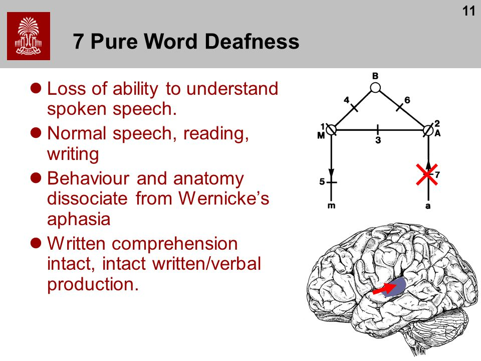 11 7 Pure Word Deafness Loss of ability to understand spoken speech. Normal speech, reading, writing Behaviour and anatomy dissociate from Wernicke's