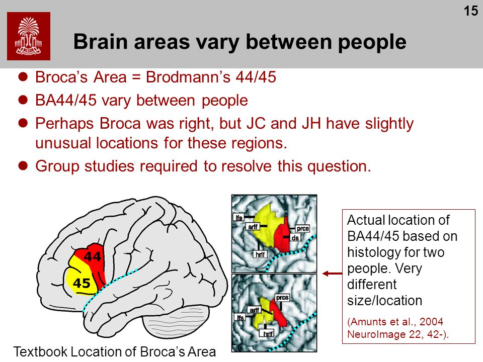 15 Brain areas vary between people Broca's Area = Brodmann's 44/45 BA44/45 vary between people Perhaps Broca was right, but JC and JH have slightly un