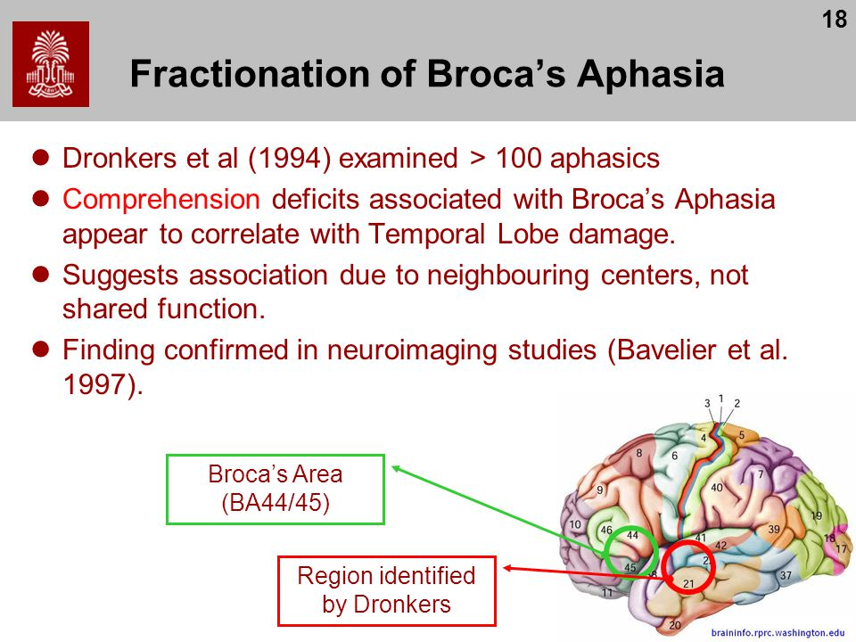 18 Fractionation of Broca's Aphasia Dronkers et al (1994) examined > 100 aphasics Comprehension deficits associated with Broca's Aphasia appear to correlate with Temporal Lobe damage.