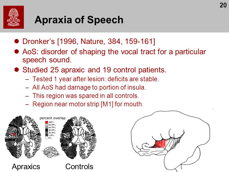 20 Apraxia of Speech Dronker's [1996, Nature, 384, 159-161] AoS: disorder of shaping the vocal tract for a particular speech sound.