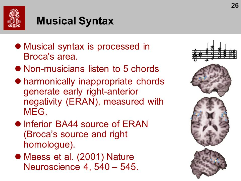 26 Musical Syntax Musical syntax is processed in Broca's area. Non-musicians listen to 5 chords harmonically inappropriate chords generate early right