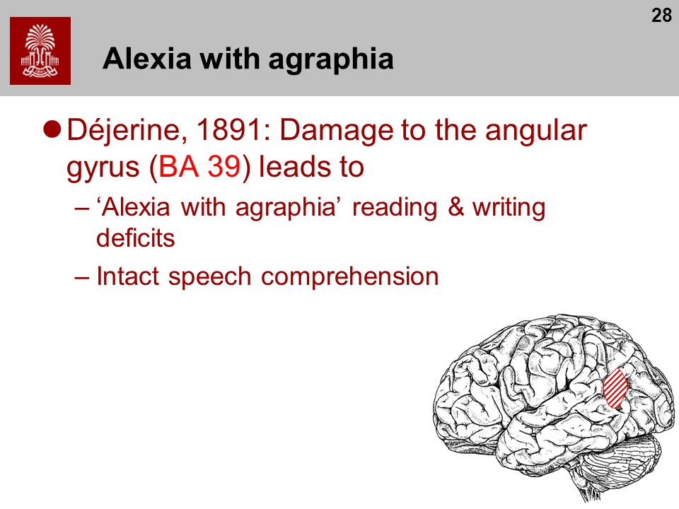 28 Alexia with agraphia Déjerine, 1891: Damage to the angular gyrus (BA 39) leads to –'Alexia with agraphia' reading & writing deficits –Intact speech comprehension