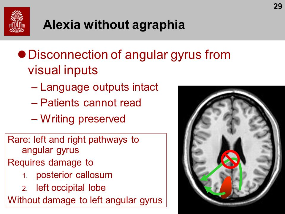 29 Alexia without agraphia Disconnection of angular gyrus from visual inputs –Language outputs intact –Patients cannot read –Writing preserved Rare: left and right pathways to angular gyrus Requires damage to 1.