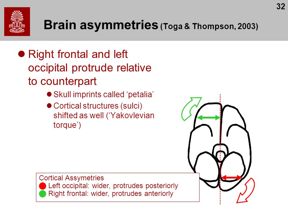 32 Brain asymmetries (Toga & Thompson, 2003) Right frontal and left occipital protrude relative to counterpart Skull imprints called 'petalia' Cortical structures (sulci) shifted as well ('Yakovlevian torque') Cortical Assymetries Left occipital: wider, protrudes posteriorly Right frontal: wider, protrudes anteriorly