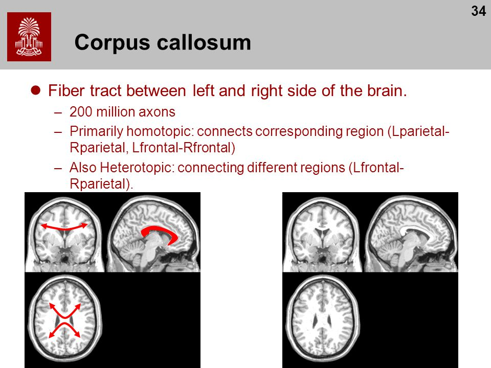 34 Corpus callosum Fiber tract between left and right side of the brain.